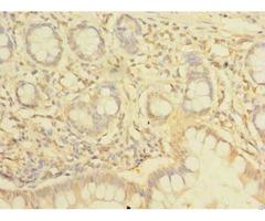 Nhlrc2 Antibody