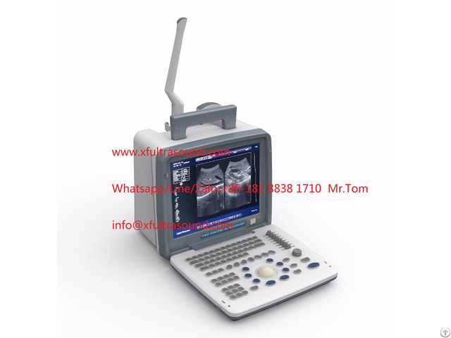 B And W Portable Ultrasound Scanner Xf300 Led