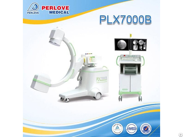 Peripheral Angiography By Chinese C Arm System Plx7000b