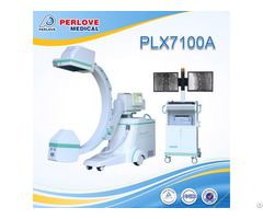 Digital Subtraction Angiography By Hf C Arm Equipment Plx7100a
