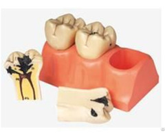 Jy B10009 Dissected Model Of Dental Caries