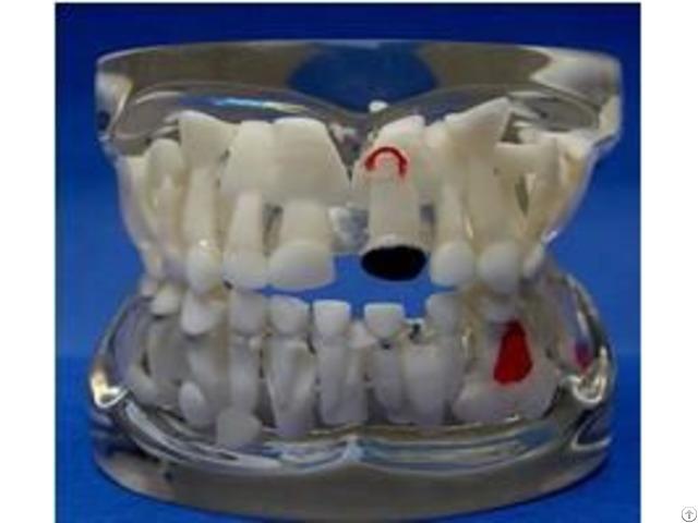 Jy B10013 Transparent Milk Teeth Pathology Model