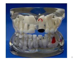 Jy B10013 Transparent Milk Teeth Pathology Model