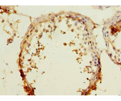 Rapgef5 Antibody