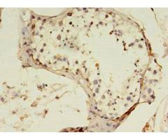 Sart3 Antibody
