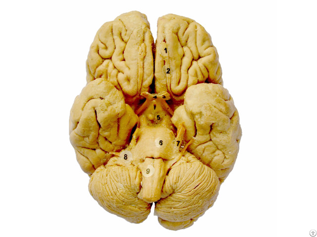 Whole Brain Plastination Specimen