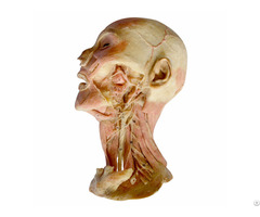 Human Deep Vascular Nerves Of Head And Neck Plastination Specimen