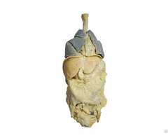 Human Whole Viscera Plastinated Organs