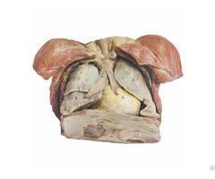 Human Thymus Gland Plastinated Bodies Exhibit