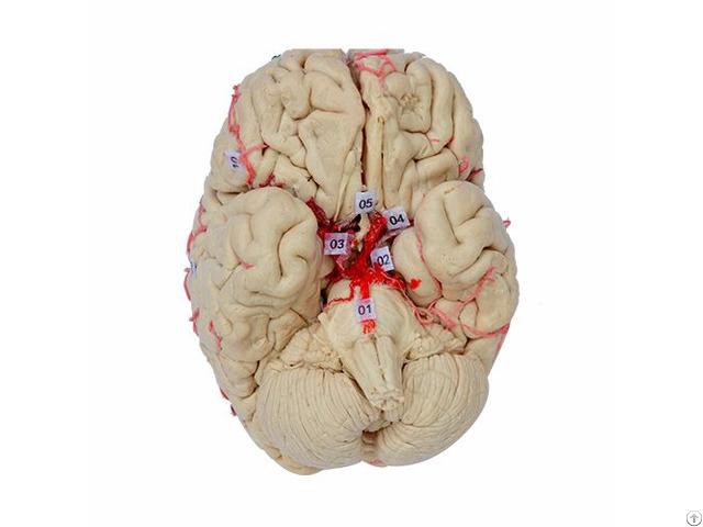 Basilar Artery Of Plastinated Human Brain Specimen