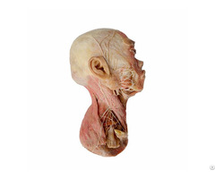 Superficial Muscle Of Head Plastination Specimen For Teaching Anatomy