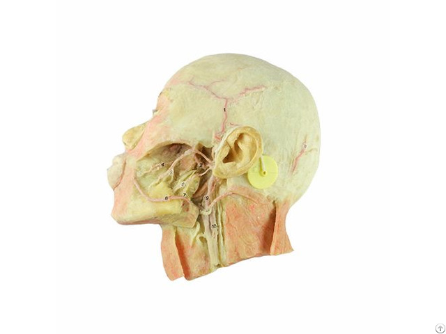 Dissection Of Head And Neck Shows Vertebral Artery Plastinated Specimen