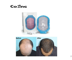 Portable Bald Laser Head Hair Growth Treatment Helmet For Home Remedy