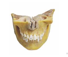 Deciduous Teeth Plastinates Human Medical Specimens
