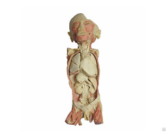 Overview Of The Endocrine System Body Plastination Exhibit
