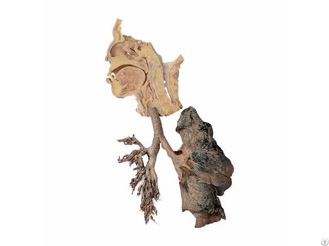 Respiratory System Plastified Human Specimen
