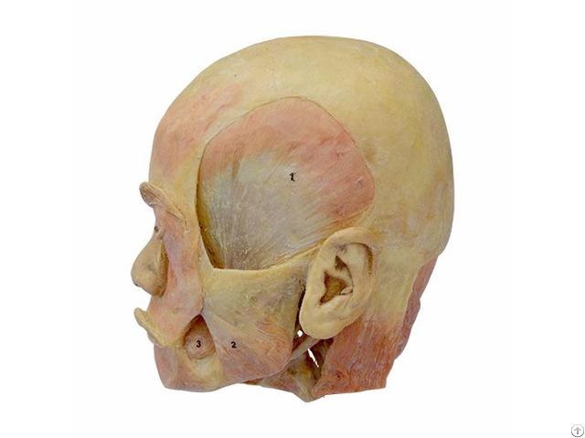 Deep Muscle Of Head Plastination Specimen For Teaching Anatomy