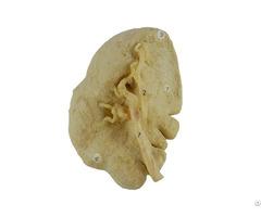 Human Spleen Plastinated Specimen