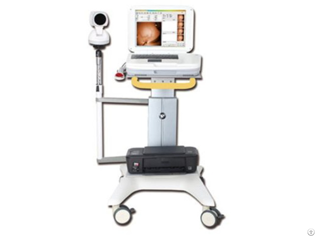 Ykd 1003 Medical Infrared Breast Examination System