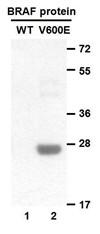 Anti B Raf V600e Mouse Monoclonal Antibody