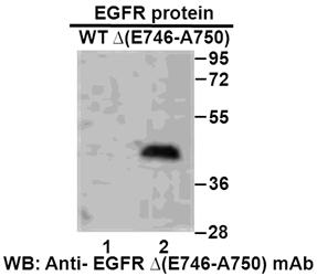 Anti Egfr E746 A750 Del Mouse Monoclonal Antibody