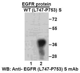Anti Egfr L747 P753 S Mouse Monoclonal Antibody