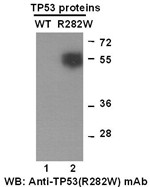 Anti Tp53 R282w Mouse Monoclonal Antibody