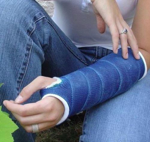 Ce Fda Approvals Orthopedic Casting Tape Bracing Bone Fracture Bandage Splint