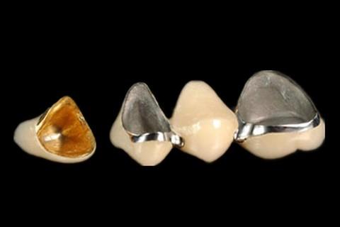 Dental Captak Teeth Restoration Precious High Noble Porcelain Crown