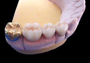 Dental Fixed Porcelain Gold Crown Precious Metal Denture And Bridge