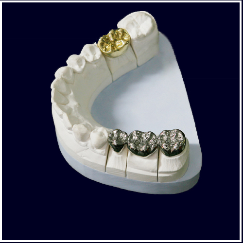 Dental Full Cast Np Gold Crown And Bridge Fcc Denture Restoration