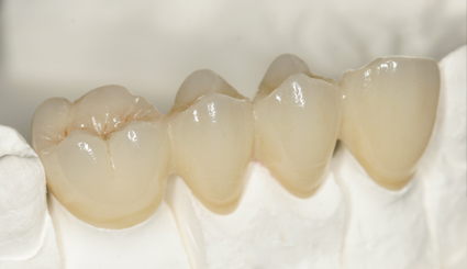 Dental Porcelain Fused To Metal Crown Titanium Alloy Pfm
