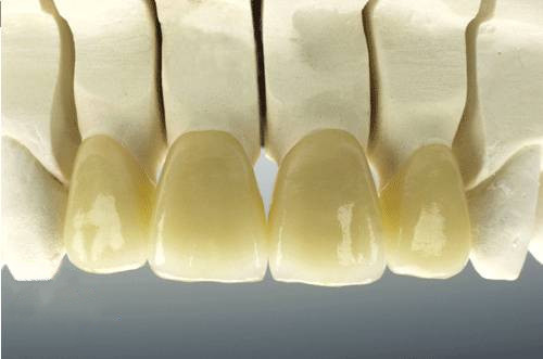 Dental Porcelain Fused To Pure Titanium Crown Pfm