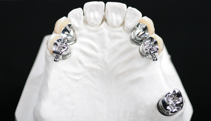 Dental Precision Attachment With Partial Denture