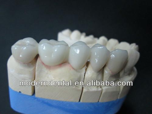 Dental Zirconia Crowns Or Veneers