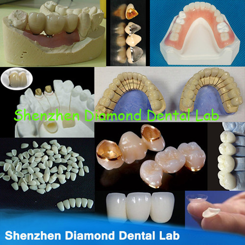 Dental Zirconia Pfm Metal Crowns And Implant Orthodontic Applinces