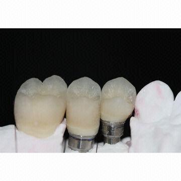 Implant Bridge 3 Units Zirconium Alumina Valplast
