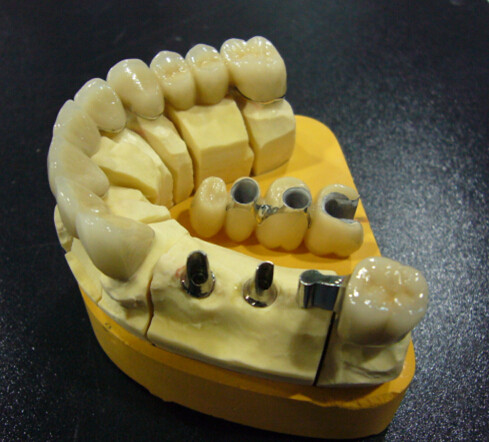 Implant Crown On Sale Only Need Euro 60 Including Shipping