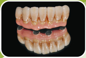 Sell Dental Prosthesis Implants Pmf Metal Framework Acrylic Denture Orthodontic