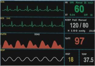 Telemetry Multi Parameter Monitoring System