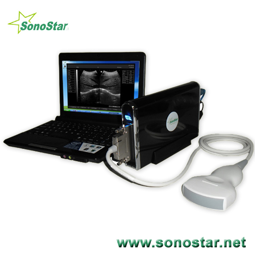 Ubox 9 Ultrasound B Scanner Box Ultrasoni Black White