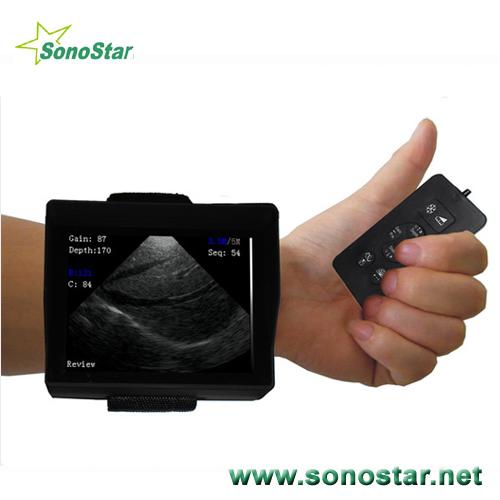 V2 Wrist Ultrasound Scanner
