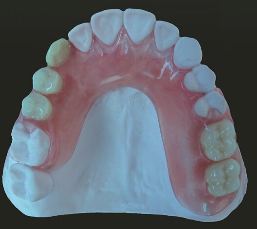 Valplast Denture On Sale Only Need Euro 40 Including Shipping