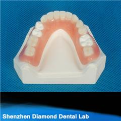 Dental Acrylic Full Denture