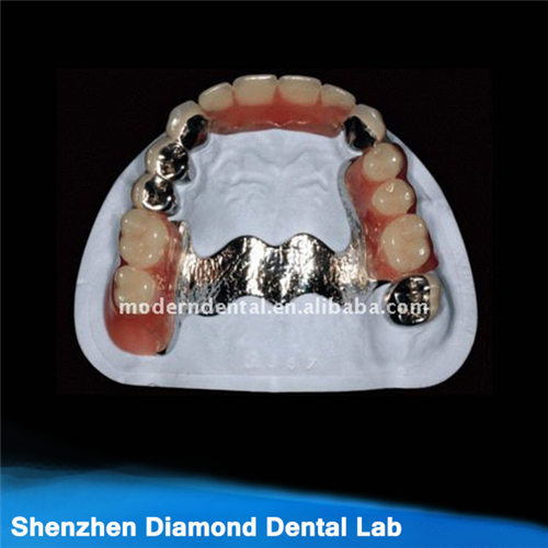 Dental Casting Metal Framework