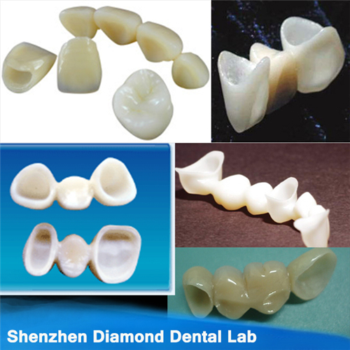 Dental Empress All Ceramic Pfm Crown And Bridge
