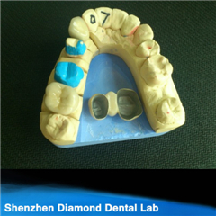 Dental Empress All Ceramic Pfm Crown Bridge