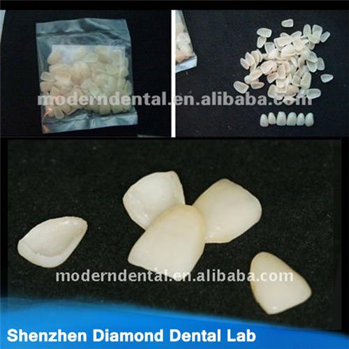 Dental Empress Ceramic Veneers Or Lumineers