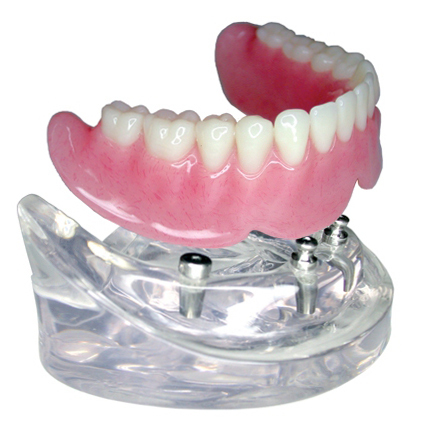 Dental Implant Chrome Cobalt Alloy Pfm Crown