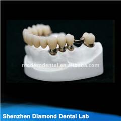 Dental Implant Crown And Bridge